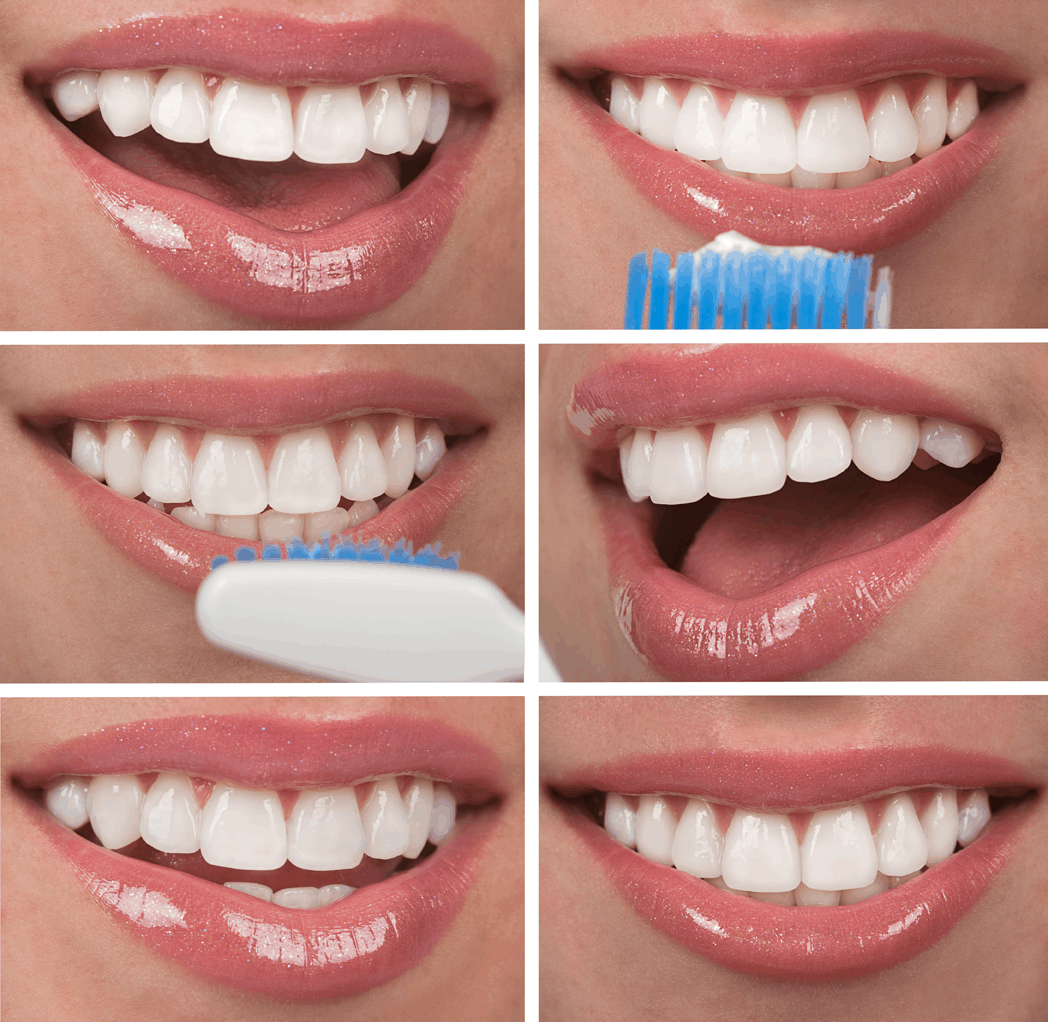 a rounder, more natural looking smile. tooth length, translucency, alignment, spacing, and gum position