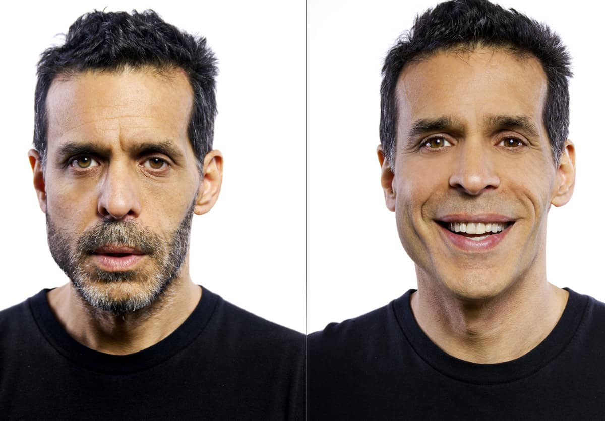 Fixing tooth before vs after