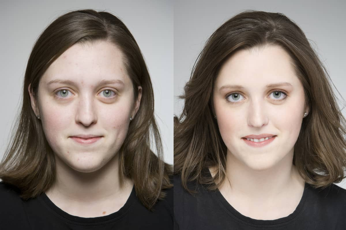 Laura, before and after fixing teeth